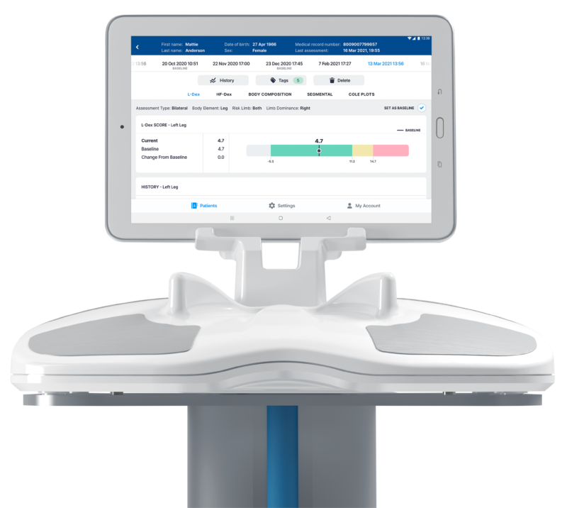ImpediMed SOZO Device featuring L-Dex Analysis